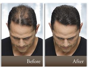 لوسیون آقایان رینفولتیل فارما لایف | 100 میل | تقویت کننده و جلوگیری از ریزش مو