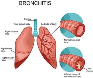 قرص برونشی پرت بیونوریکا | 20 عدد | برطرف کننده علائم برونشیت حاد و سرماخوردگی