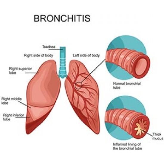 قرص برونشی پرت بیونوریکا   20 عدد   برطرف کننده علائم برونشیت حاد و سرماخوردگی
