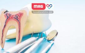 عصب کشی دندان چقدر طول میکشد؟